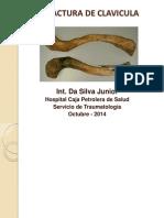 Fractura de Clavicula - Da Silva Junior