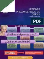 Lesiones Precancerosas de Cervix