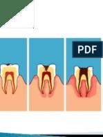 Caries Dental Preve
