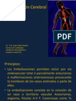 6. Embolizacion Cerebral