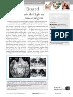 new mri tools shed light on parkinsons disease progress.pdf