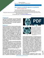 Tumores Cerebrales Gigantes en Pediatría