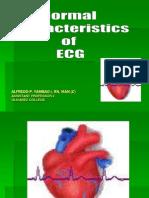 Normal Characteristics of Ecg