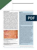Sheehan Syndrome Lancet Eponym 2003