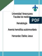 Anemia Hemolítica Autoinmunitaria