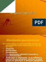 Gingivita hipertrofica.ppt