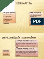 Estenosis Aortica, Mitral y Pulmonar