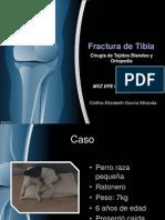 Fractura Tibia