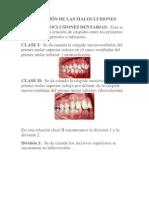 CLASIFICACIÓN DE LAS MALOCLUSIONES.docx