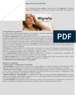 Tratamiento de La Migraña Con Acupuntura