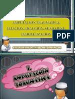 Amputacion