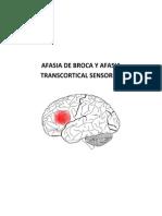 Afasia de Broca y Afasia Transcortical Sensorial