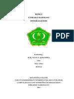 REFERAT-spondilolistesis