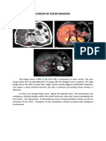 Cancer of Colon Imaging