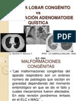 ENFISEMA LOBAR CONGENITO Y MALFORMACION ADENOMATOIDE QUISTICA