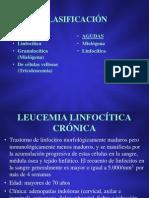 10_LEUCEMIAS_