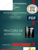 Fractura de Monteggia y Gallazzi
