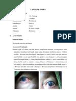 Glaukoma Akut Sudut Tertutup