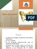 Pelvis y Tipos de Pelvis