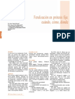 182 CIENCIA Ferulizacion Protesis Fija