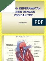 TOF VSD