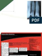 Granuloma Periapical [Triptico]