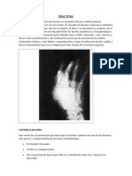 Fractura patologia