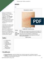 Dermatite de Contato – Wikipédia, A Enciclopédia Livre