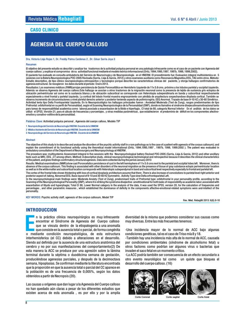 imágenes de agenesia del cuerpo calloso rochester ny