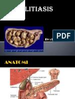 Cholelitiasis
