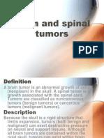 Referat tumor otak dan medspin