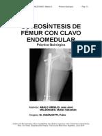 Osteosíntesis de Fémur Con Clavo Endomedular
