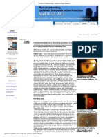 Article Intracorneal Inlays Showing Positive Outcomes