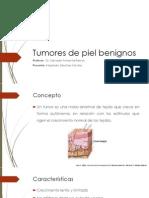 Tumores de Piel Benignos