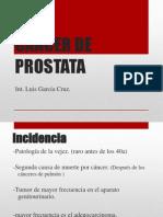 ca. prostata.ppt