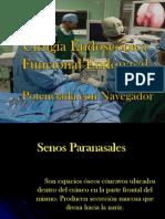 Cirugia Endoscopica Funcional Endonasal