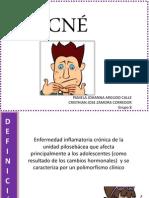 ACNÉ.pptx