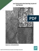J Clin Pathol 2004 Febnb 57(2) 208-9, Figure 1