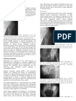Chondrosarcoma Imaging