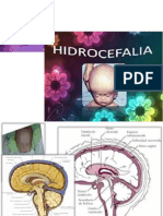 hidrocefalea