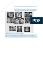 Radiografii Intraorale