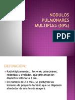 Nodulos Pulmonares Multiples (Nps)
