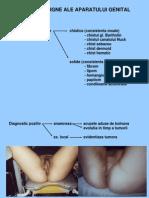 Tumorile benigne