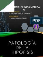 Patología de La Hipófisis