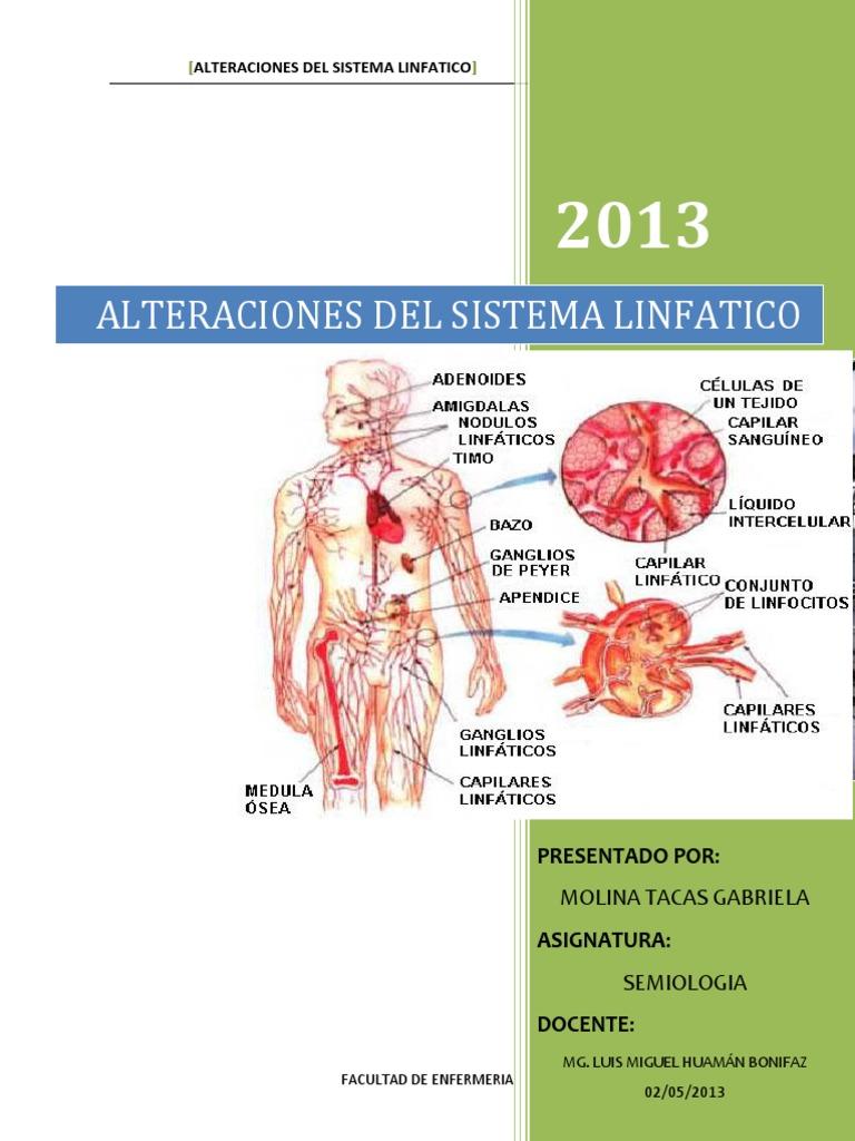 Dorable Gráfico De Los Ganglios Linfáticos Adorno - Anatomía de Las ...
