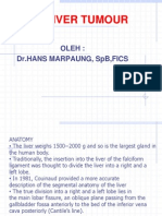 Hepatocellular Carcinoma 3