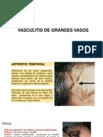 Vasculitis II Emilio Maslucan
