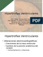 20110301 Hipertrofias Ventriculares Miguel Galindo