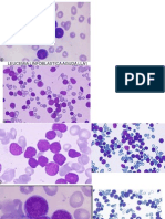Leucemias Imagenes-CBTIS