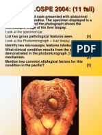 Pathology of CNS Tumors